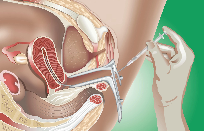 Фото в искусственной сперме, Сперма » Страница 3 порно фото и секс фото 14 фотография