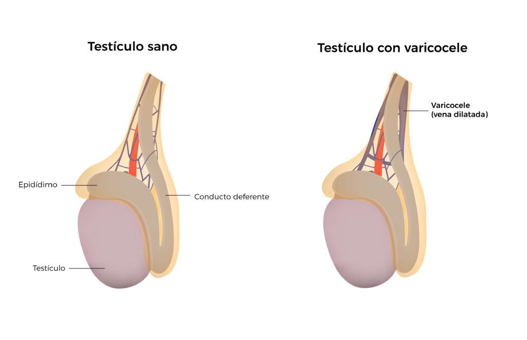 Varicocele, un problema asociado a la fertilidad masculina